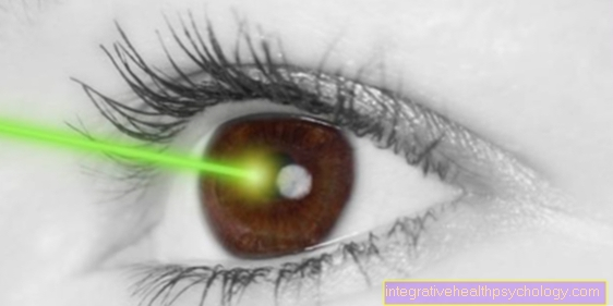 Laser therapy for astigmatism