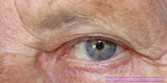 Operate drooping eyelids? - You should know that!