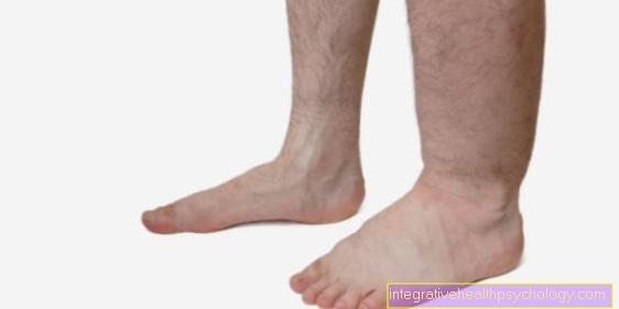 Lymfødem i benene
