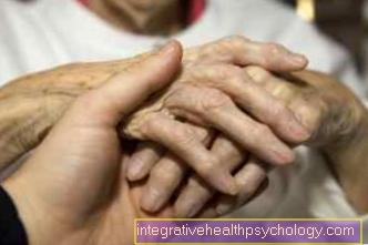Demencia vs. Alzheimer