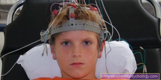Διάγνωση της επιληψίας