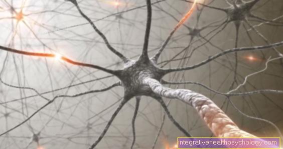 इंटरकोस्टल न्यूराल्जिया
