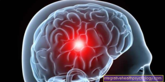 Life expectancy with a glioblastoma