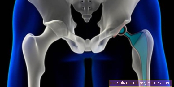 Hip dislocation after TEP