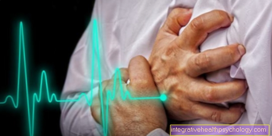 Pain in the left arm as a sign of a heart attack