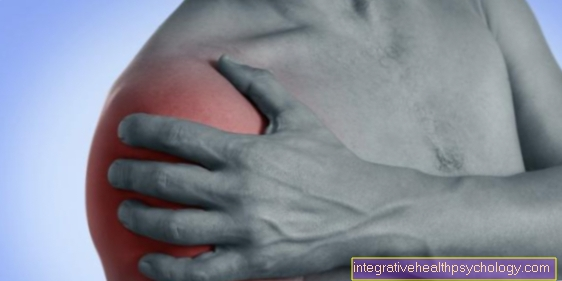 What is rotator cuff syndrome?