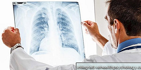 Pneumonia without cough