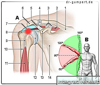 Impingement syndrome of the shoulder - Physiotherapeutic techniques and exercises