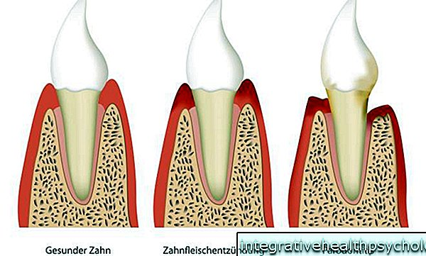 Periodontal disease and periodontitis